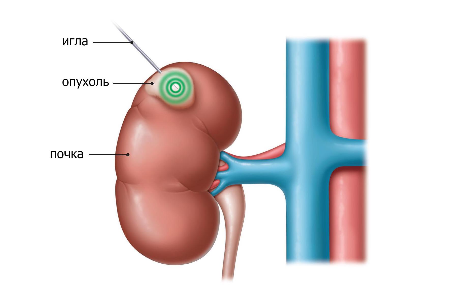 Абляционная терапия убивает опухолевые клетки путем нагревания или замораживания