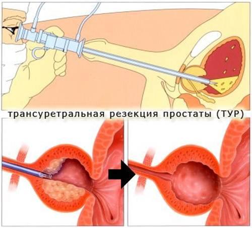 Удаление аденомы простаты через мочеиспускательный канал