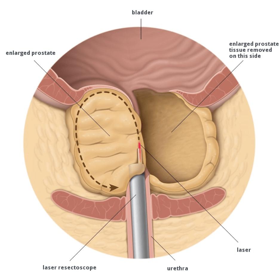 Как после тур операции сперма попадает в мочевой