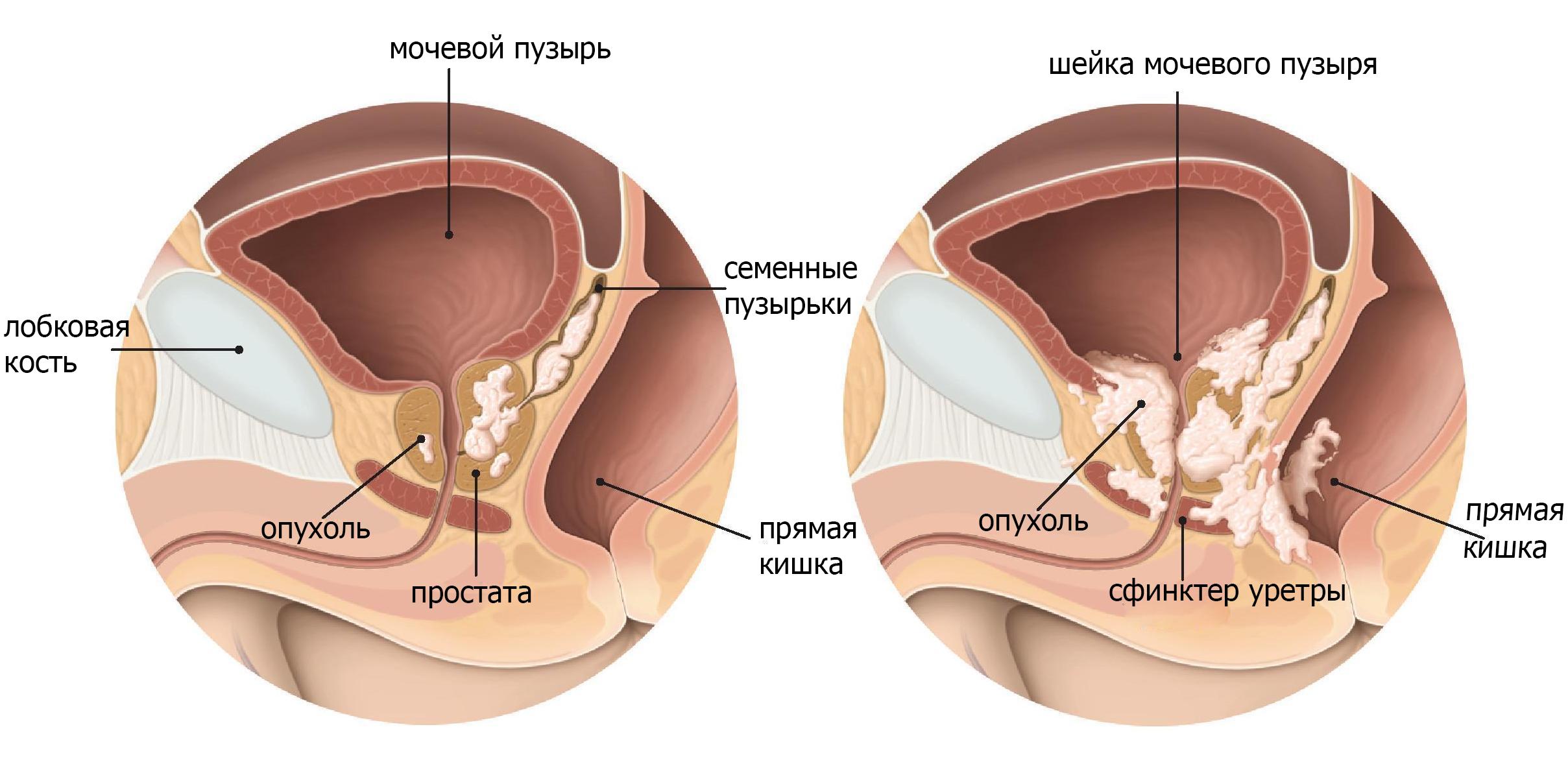 Т3 опухоль простаты распространяется
